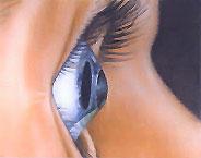 occhio_cheratocono