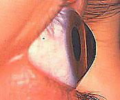 occhio_cheratocono2