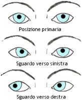 strabismo1