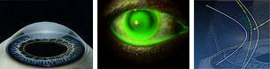 occhio_cheratocono3