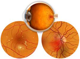 retinopatia